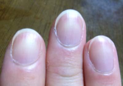 爪のケアを考える。
