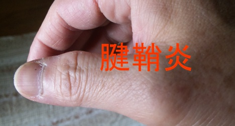 右手の親指が痛いと思ったら・・・