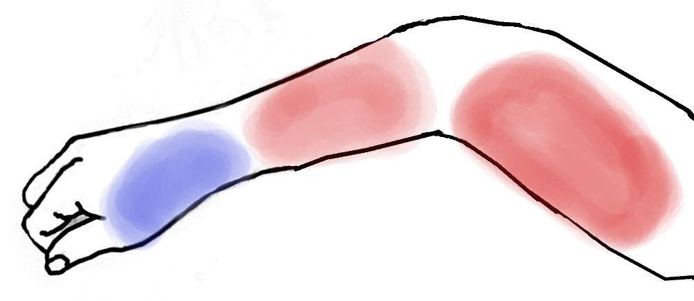 湿布を貼る処を図示